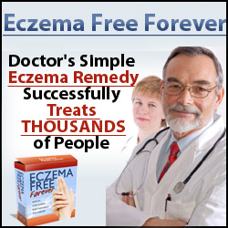 Eczema Free Forever Manual by Rachel Anderson