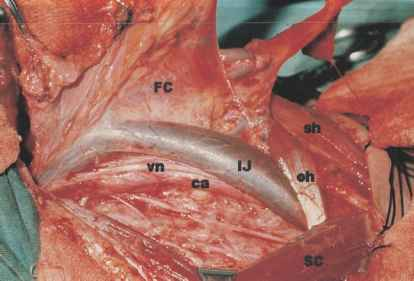 Carotid Artery Dissection