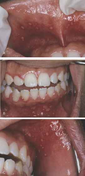 Intraoral Hsv Stomatitis